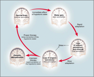 Effects of Hyponatremia on the Brain and Adaptive Responses Within minutes after the brain injury
